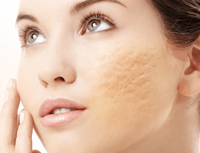 Tratamento para Cicatriz de Acne
